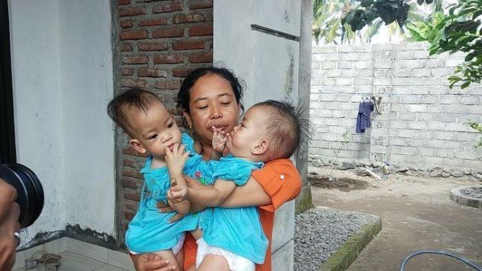 POPULER Pilunya Kondisi Kembar Siam Inaya & Anaya, Cuma Punya 1 Hati, Kondisi Ekonomi Tak Mumpuni