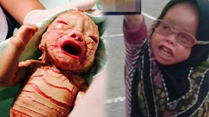 Kisah Bayi Terlahir dengan Kondisi Kulit Langka, Mampu Bertahan 6 Tahun, Lihat Potretnya Kini!
