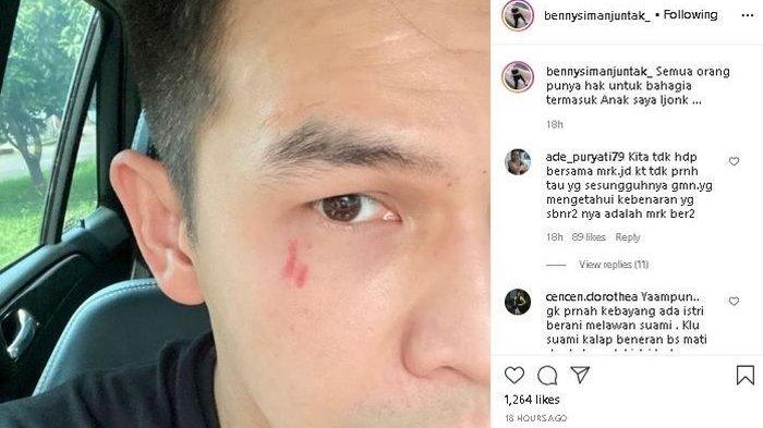 Benny Simanjuntak Ingin Ijonk & Dhena Bercerai : Dari pada Anak-anak Tak Punya Bapak karena Gila