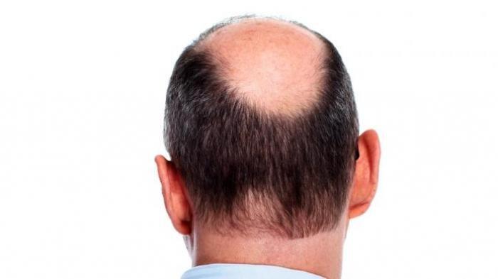 Cara Menjadikan Pisang sebagai Masker Rambut Penghilang Ketombe & Mengurangi Kebotakan