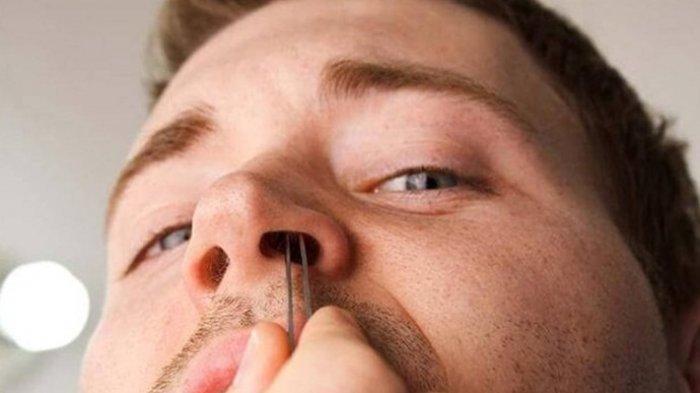 Tips Mengatasi Hidung Tersumbat, Tenryata Mudah Diatasi