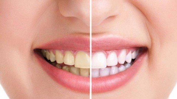 Bahaya Karang Gigi, Penyebab, Akibat dan Pencegahan yang Dilakukan