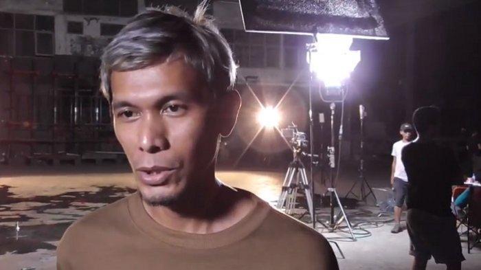 Lukman Personil Noah Jalani Operasi Pengangkatan Kantung Empedu