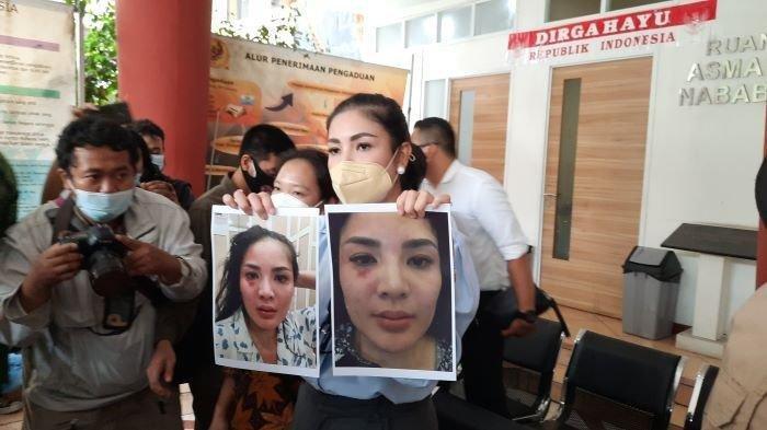 Dinyatakan Bersalah Atas Kasus KDRT, Mantan Suami Nindy Ayunda Divonis 2 Bulan Penjara