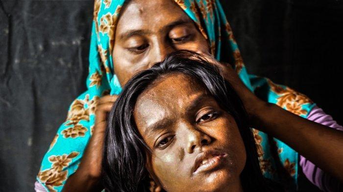 Sejarah Kedatangan Pengungsi Rohingya di Aceh, Terusir dan Menjadi Etnis Paling Teraniaya di Dunia