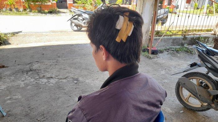 Dahri, Kader HMI MPO Mamuju Jadi Korban Penyerangan OTK Alami Luka Serius di Kepala