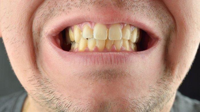 WASPADA! Ternyata Ini Penyebab Kenapa Gusi Berdarah Saat Sikat Gigi