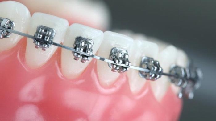 APA Wajib Bersihkan Karang Gigi Sebelum Pasang Behel?