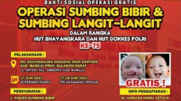 Sambut HUT Bhayangkara, Polda Sulbar Bakal Gelar Operasi Bibir Sumbing Gratis