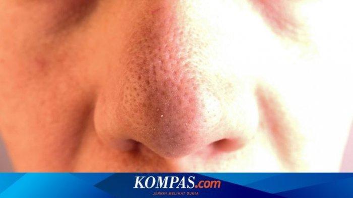 Termasuk Pakai Lemon, 4 Tips Hilangkan Komedo di Hidung Secara Alami
