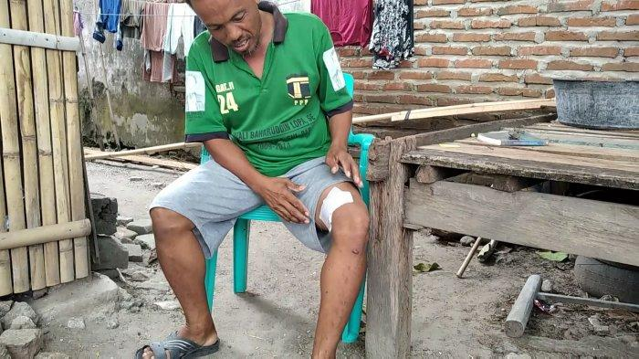 Kronologi Siswa SD di Pambusuang Polman Digigit Anjing Gila, Warga: Lari Masih Dikejar