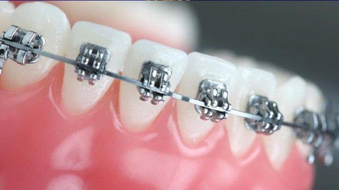 Pakai Kawat Gigi Jangan Cuma Untuk Penampilan