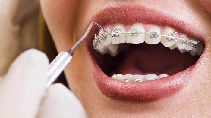 Merawat Gigi yang Dibehel Cukup Dengan Rajin Jaga Kebersihan