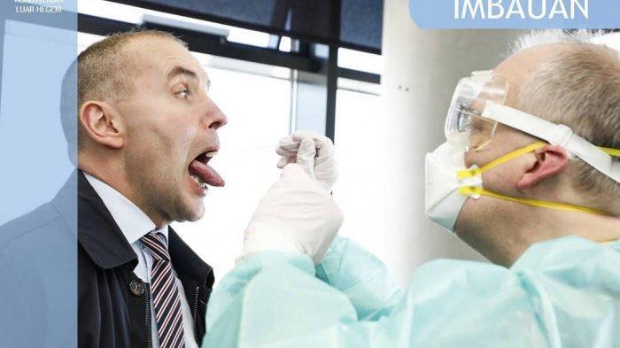 Imbauan Pemerintah Slovenia Mengenai Wabah Virus Corona yang Akan Pergi, Tinggal, dan Meninggalkan