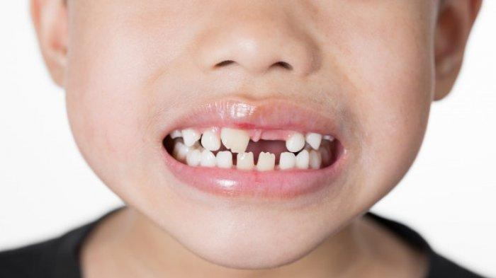 Apa Itu Baby Bottle Tooth Decay?