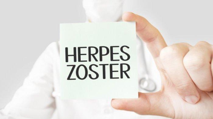 Herpes Zoster, Penyakit Kulit yang Timbulkan Rasa Nyeri hingga Demam