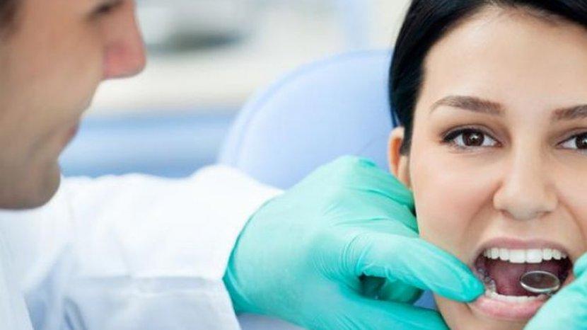 Cara Memutihkan Gigi dengan Bahan Alami dan Aman