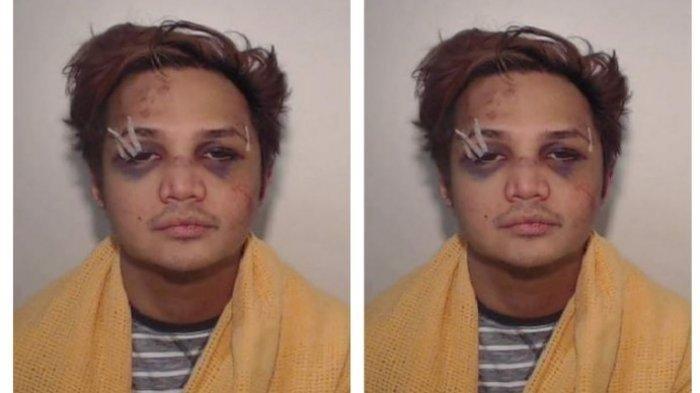 Viral foto predator seksual Reynhard Sinaga saat pertama kali tertangkap polisi, penuh luka lebam