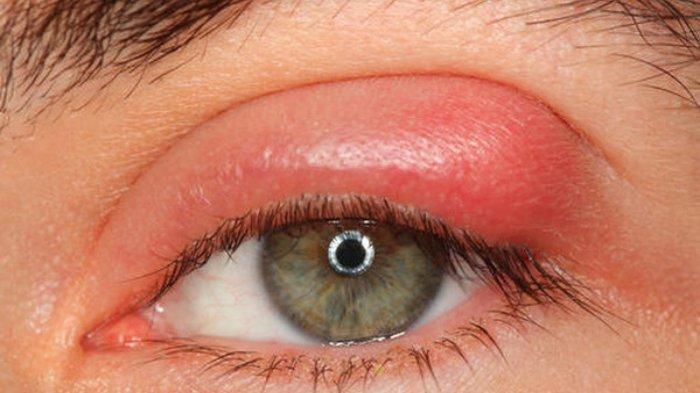 blefaritis.jpg