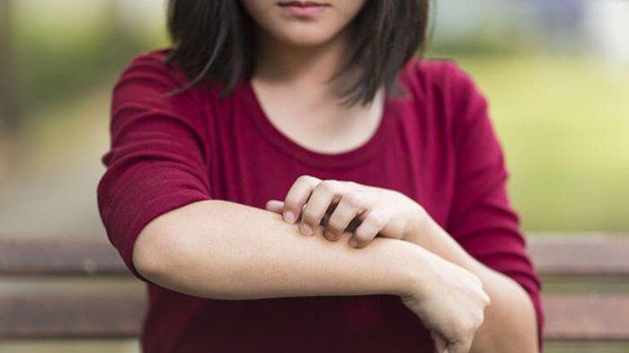dermatitis-herpetiformis-adalah-kondisi-yang-memiliki-gejala-seperti-merasa-gatal.jpg