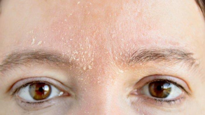 dermatitis-seboroik.jpg