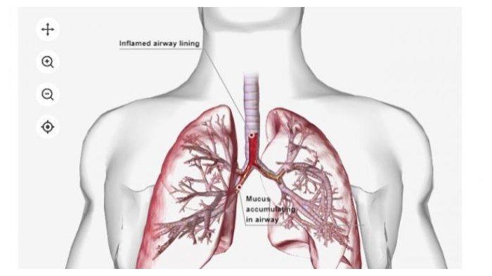 ilustrasi-pneumonia-2.jpg