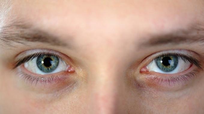 ilustrasi-sindrom-horner.jpg