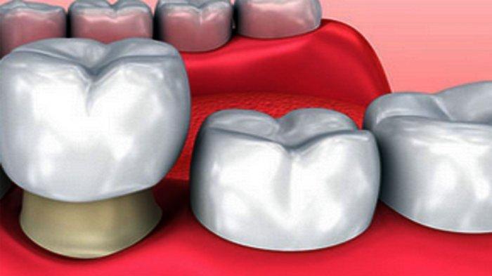 Mahkota Gigi, Bikin Gigi Patah Jadi Sempurna