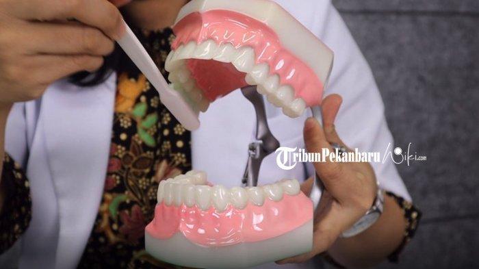 Menggosok Gigi Tidak Bisa Memutihkan Gigi, Begini Penjelasan Dokter