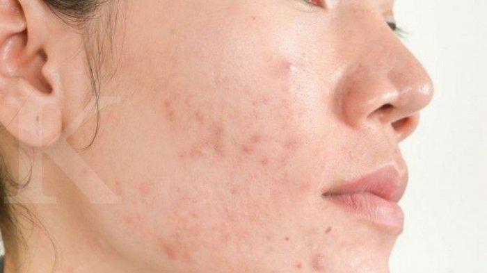7 Penyebab Bruntusan di Wajah, 4 Cara Menghilangkan Bekas Jerawat Membandel
