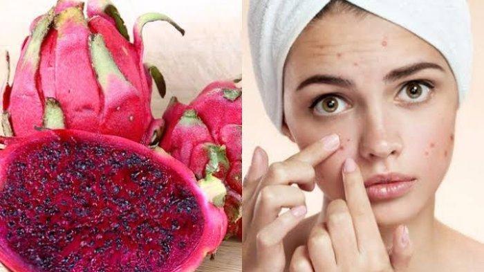 Jarang Diketahui, Ini 6 Manfaat Buah Naga untuk Kecantikan Kulit